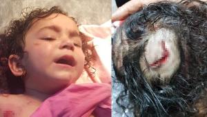 Rottweiler'ın saldırdığı 2 yaşındaki Almila ölümden döndü