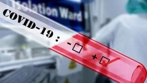 Aradahanlı 2 kişi Corona Virüsü Kurbanı oldu